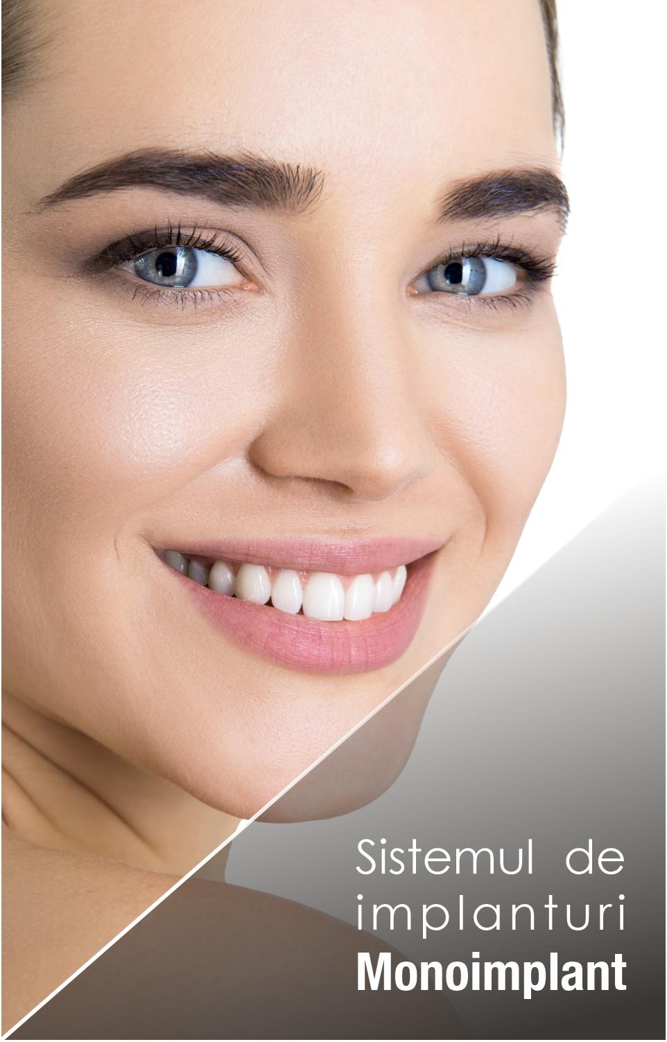 Implanturile Monoimplant: calitate premium Elveția, la un preț avantajos!