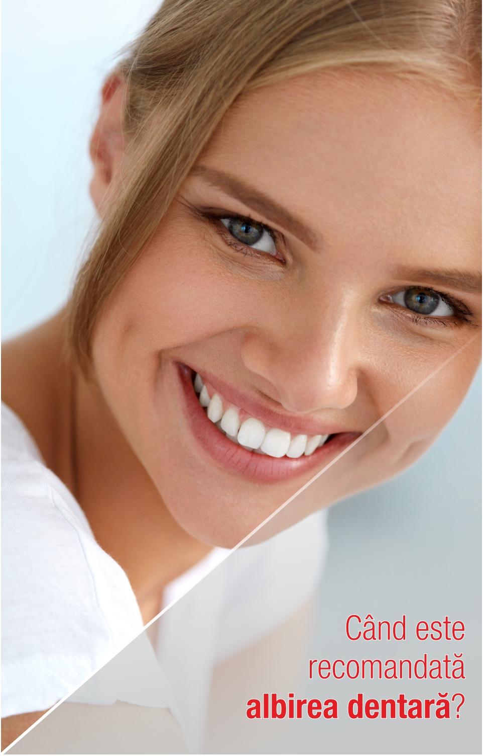 Albirea dentară: tot ceea ce trebuie să știi